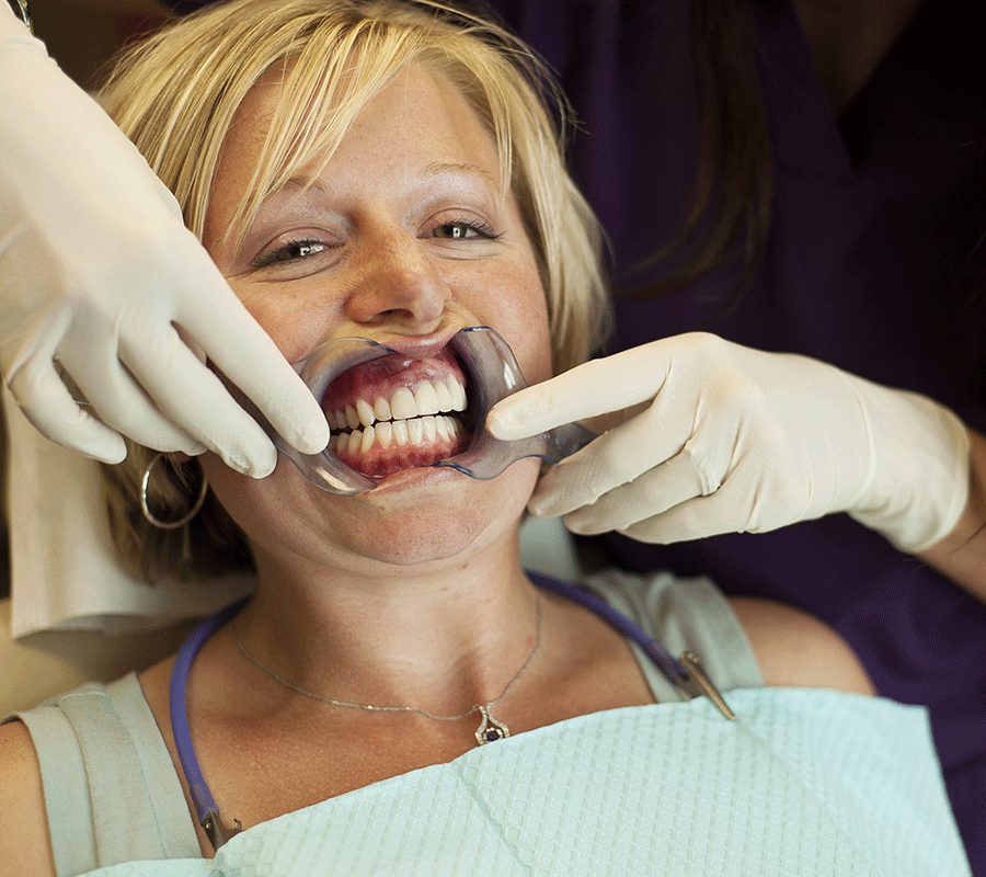 blanchir un appareil dentaire